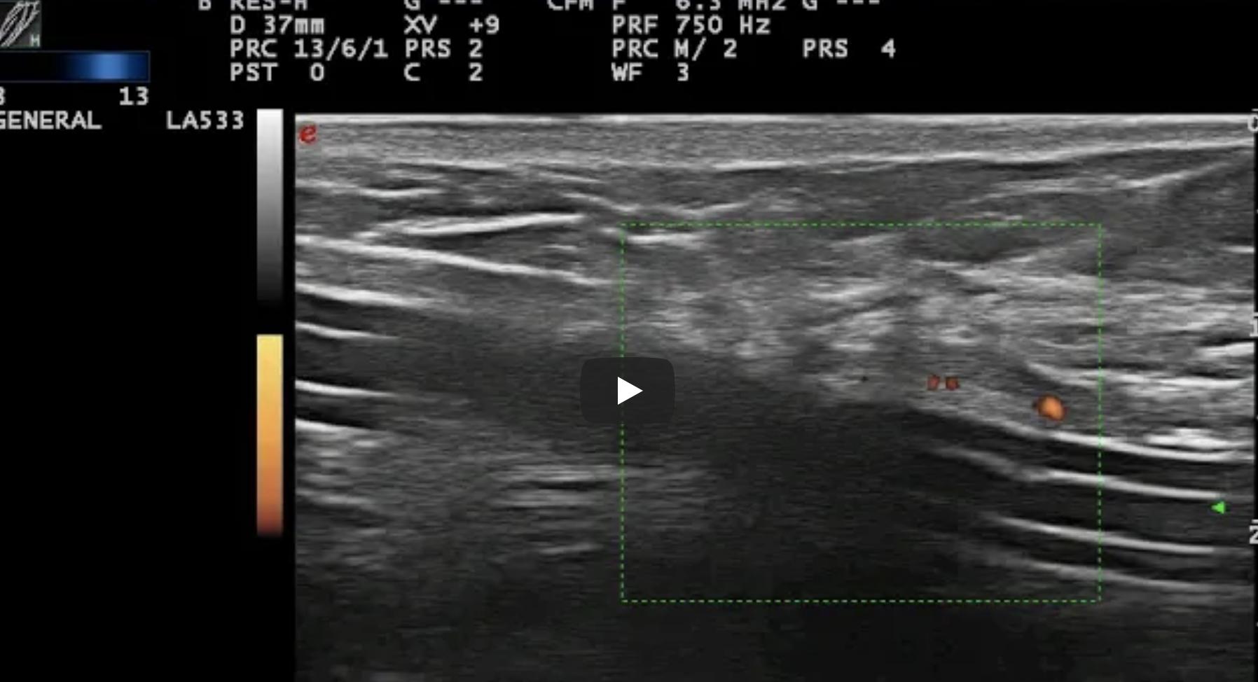 Catetere peritoneale normo-funzionante